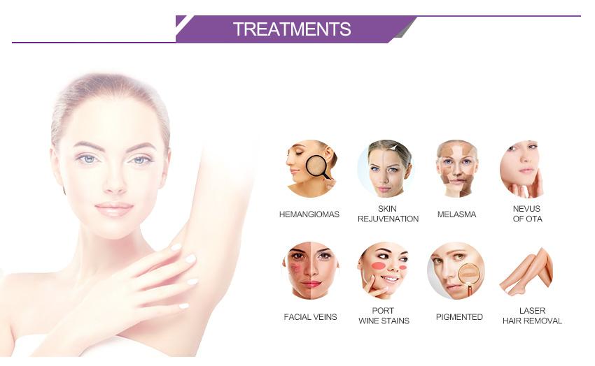 Alexandrite Laser 2018 Hair Removal Skin Rejuvenation
